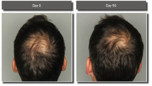 Viviscal hair supplement results