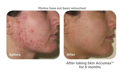 skin accumax before and after